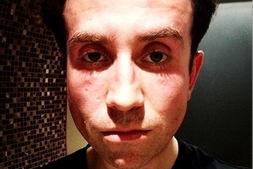 Nick Grimshaw Celebrity social network pictures