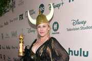 Patricia Arquette attends The Walt Disney Company 2020 Golden Globe Awards Post-Show Celebration at The Beverly Hilton Hotel on January 05, 2020 in Beverly Hills, California.