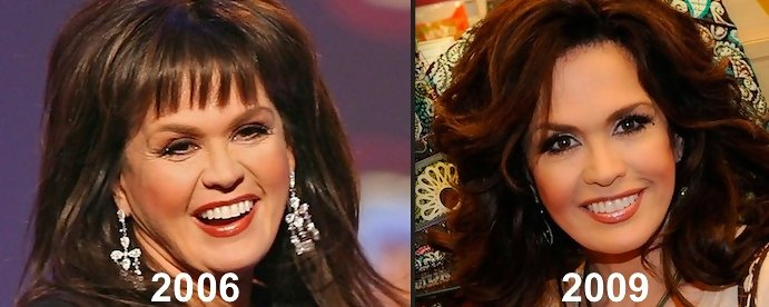 Image Result For Marie Osmond Without Makeup