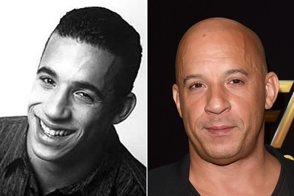 Famous Bald Celebrities When They Had Hair