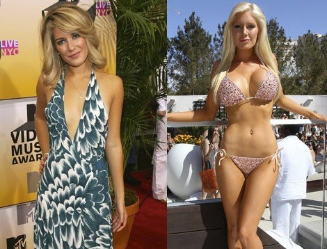 E Cup Breast Implants Photos http://breastenhancement.zedicate.com/breast-augmentation-ddd/