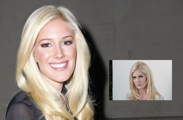 heidi montag before and after plastic. Heidi Montag#39;s plastic surgery